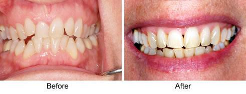 modern-orthodontics1