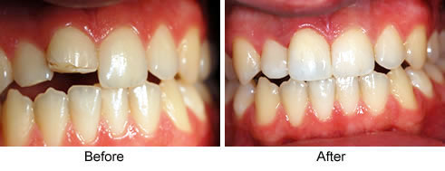 repair-chipped-tooth1
